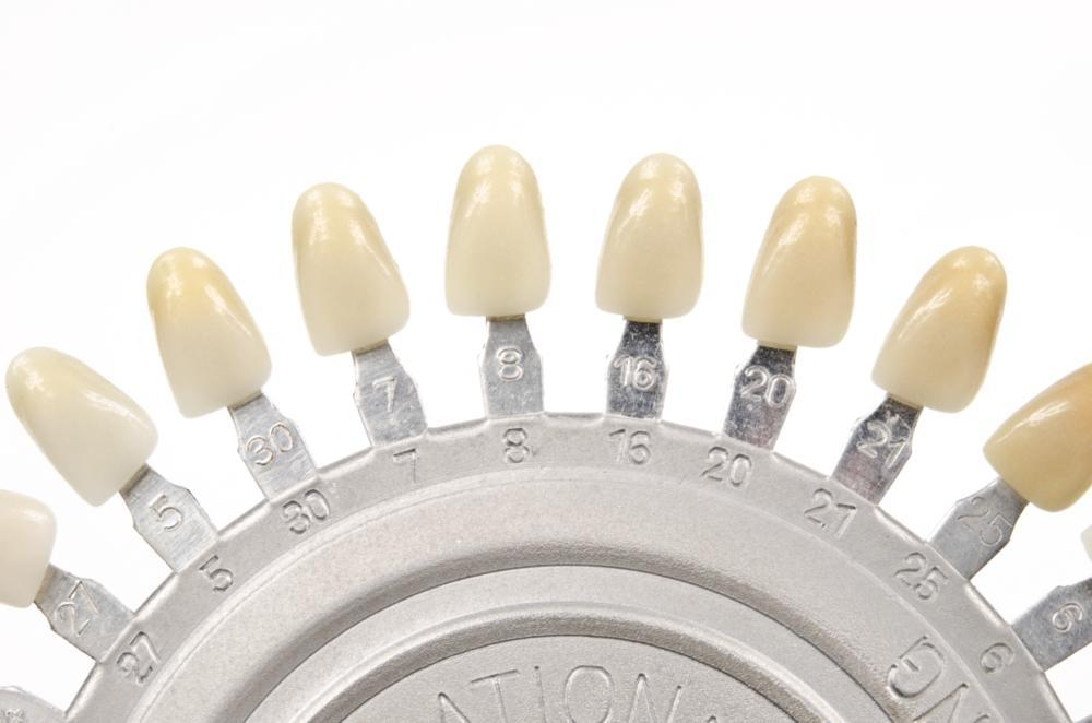 dental crowns | vienna va dentist
