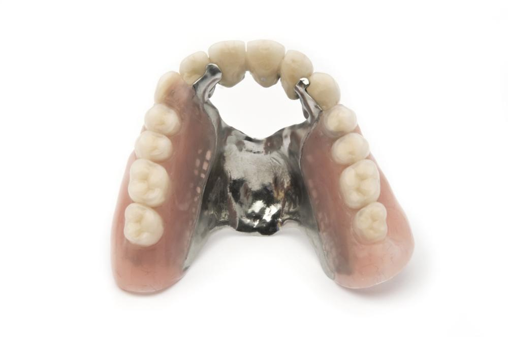 full and partial dentures | vienna va dentist