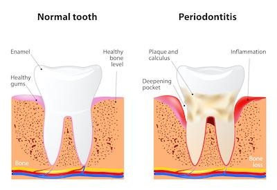 image of periodontal disease in vienna va