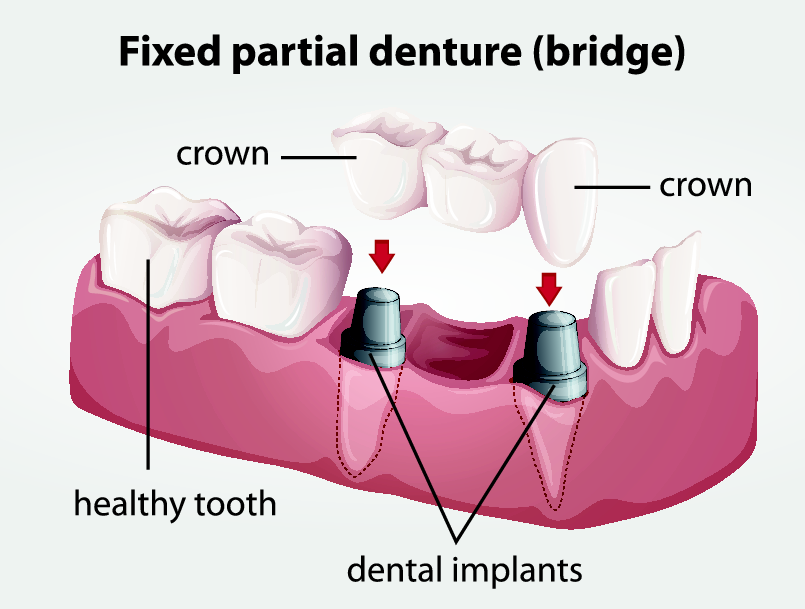 dental bridge diagram or illustration