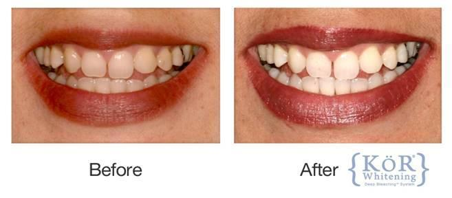 A Before & After picture of KöR teeth whitening | Kor Teeth Whitening in Vienna