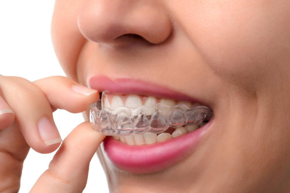 invisalign treatment | vienna va dentist