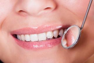 A mouth getting examined with a dental mirror | Tooth-Colored Dental Fillings Vienna VA
