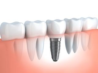 Diagram of Dental Implants | Vienna VA Dental Implants