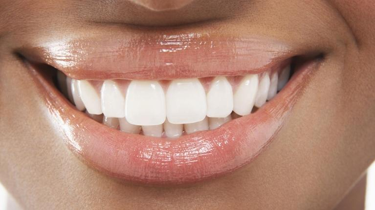 Woman with teeth whitening in Tysons Corner
