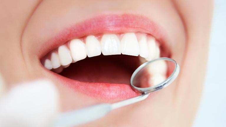 Dental Cleaning Vienna VA