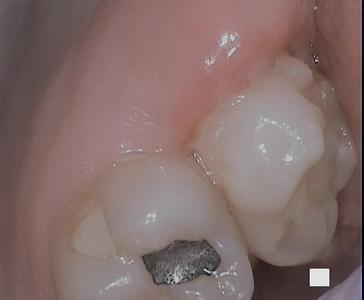 gums that have had growth removed | dentist in vienna va