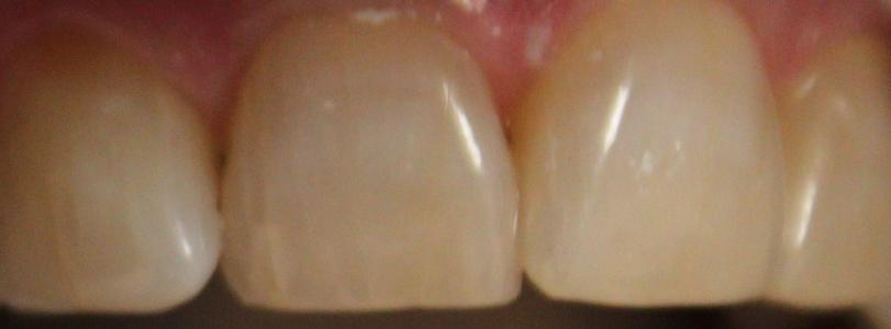 front four teeth before a Zoom! whitening treatment | professional teeth whitening vienna va