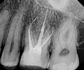 Root-Canal-Treatment-After-Image