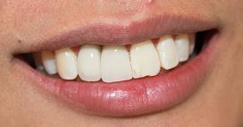 a patients mouth who's had crowns placed on his implant posts | vienna va dental implants