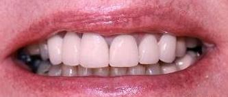new crown and bridges show no gap between tooth and gum line | crowns and bridges in vienna va