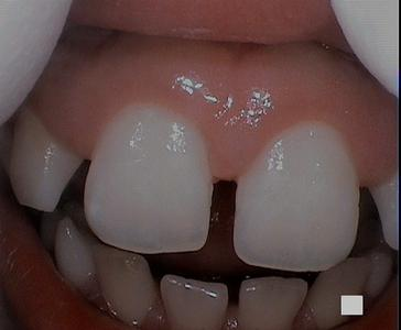 patients mouth after a gum lesion has been removed | laser dentist vienna va
