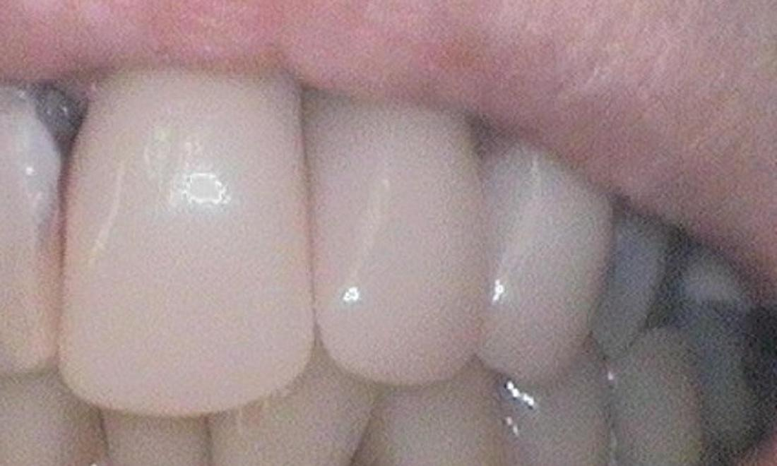 chipped teeth fixed with a cerec, same day crown | dentist in vienna