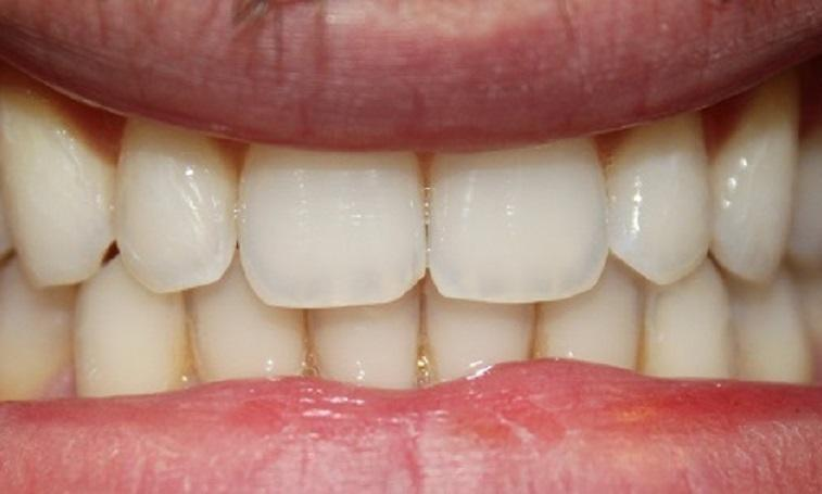 two front teeth with no gap, and less gum tissue in between | invisalign vienna va
