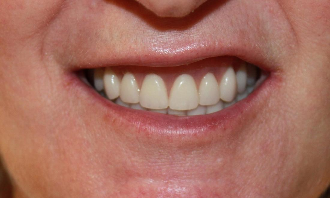 a smile with a full set of teeth, thanks to dentures crafted from our vienna va office