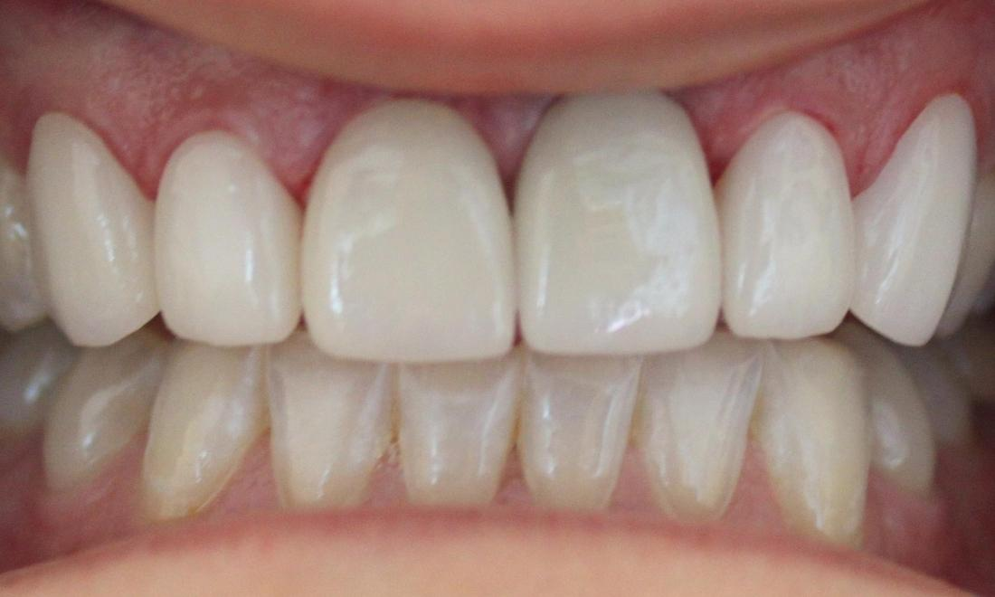 patients mouth after receiving a dental implant crown and bridge | dental implants in vienna