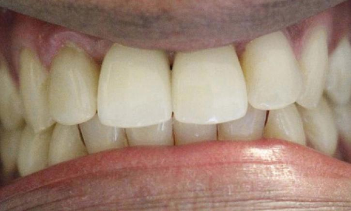 a newly restored missing front tooth and chipped front teeth thanks to porcelain crowns | crowns in vienna va