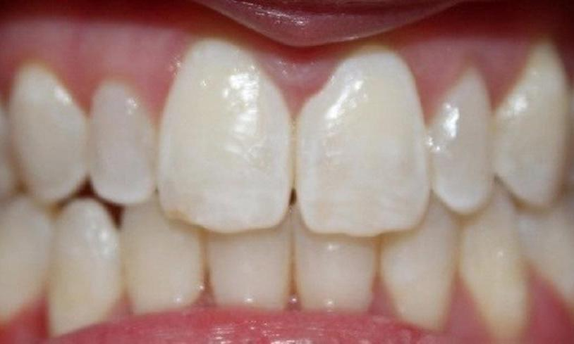 a patients upper teeth after invisalign treatment | invisalign dentist in vienna