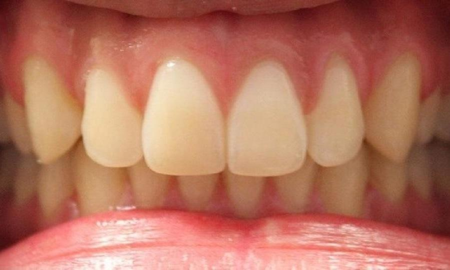 upper front teeth after invisalign treatment, without gap | invisalign dentist in vienna virginia