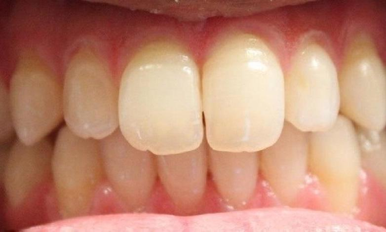 a patients upper front teeth, now aligned together after an invisalign treatment | invisalign dentist in vienna