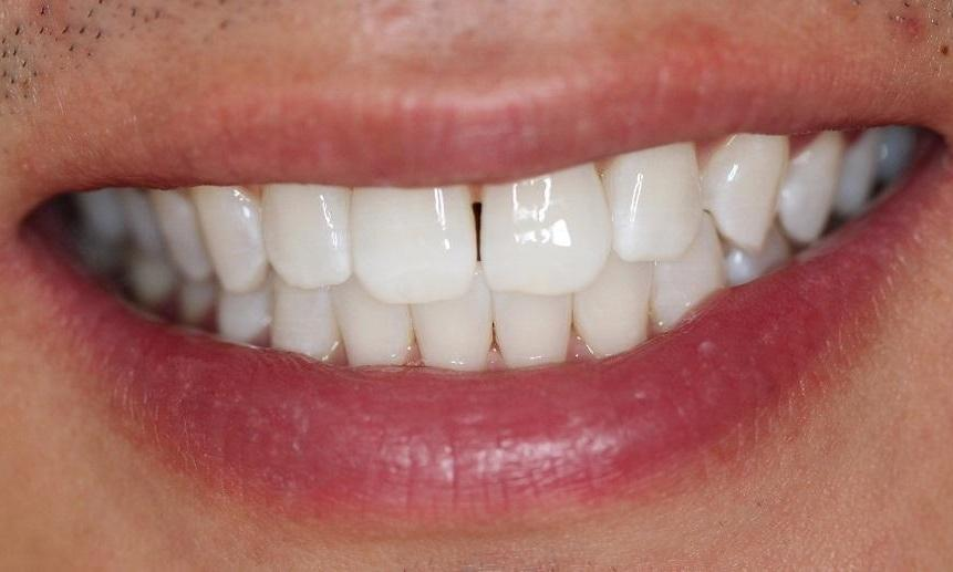 teeth after a KöR teeth whitening | dentist in vienna va
