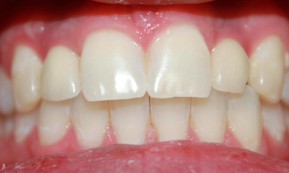 teeth after a laser whitening treatment | teeth whitening dentist in vienna