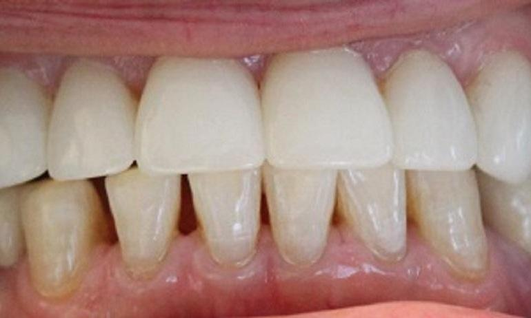 teeth after laser teeth whitening and crown procedures from our vienna office | laser teeth whitening in vienna va