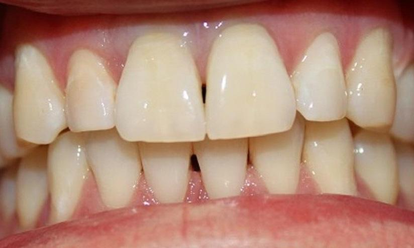 teeth after a laser whitening procedure at our vienna office | laser teeth whitening vienna