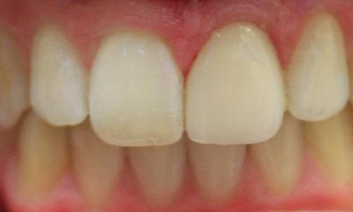 a tooth, lengethened after a porcelain crown | dental crowns in vienna