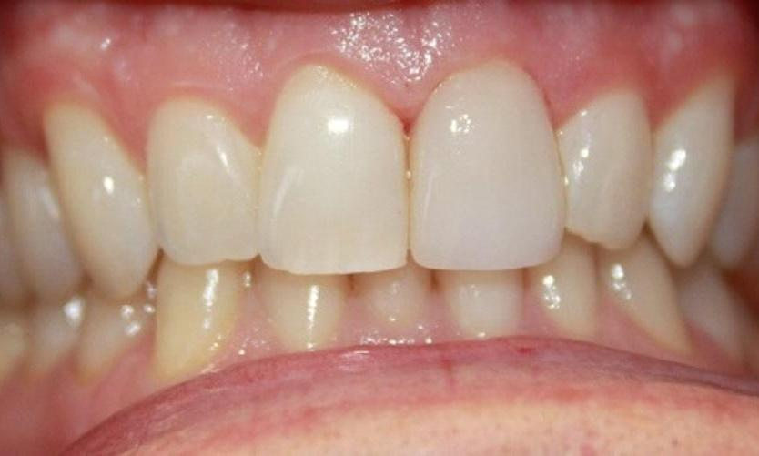 a chipped front tooth repaired by a porcelain crown
