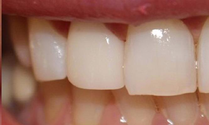 a misshapen, discolored tooth restored with a porcelain crown | dentist in vienna