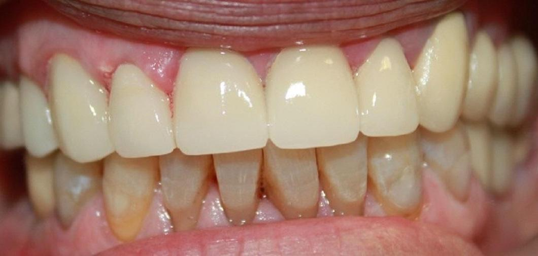teeth after teeth whitening and with new porcelain crowns | vienna va dentist