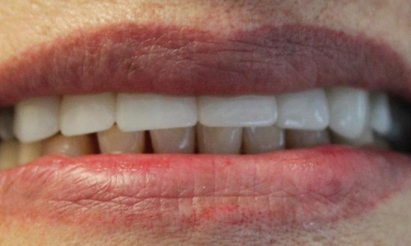 a set of teeth after dental crowns | dental crowns in vienna
