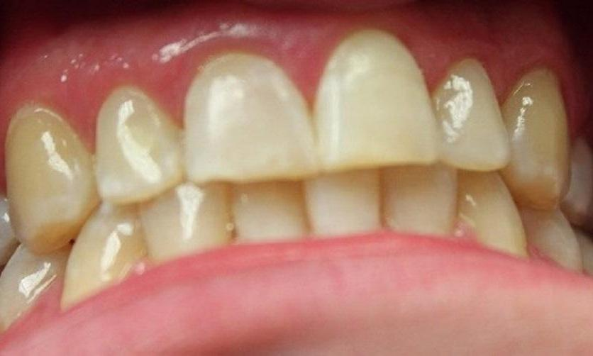 teeth that have had white spots removed after a resin infiltration | dentist in vienna va