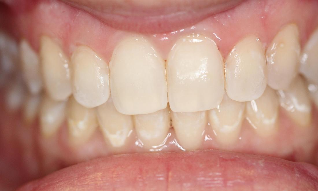 teeth without white spots near the gum line, thanks to Resin Infiltration | cosmetic dentist vienna va