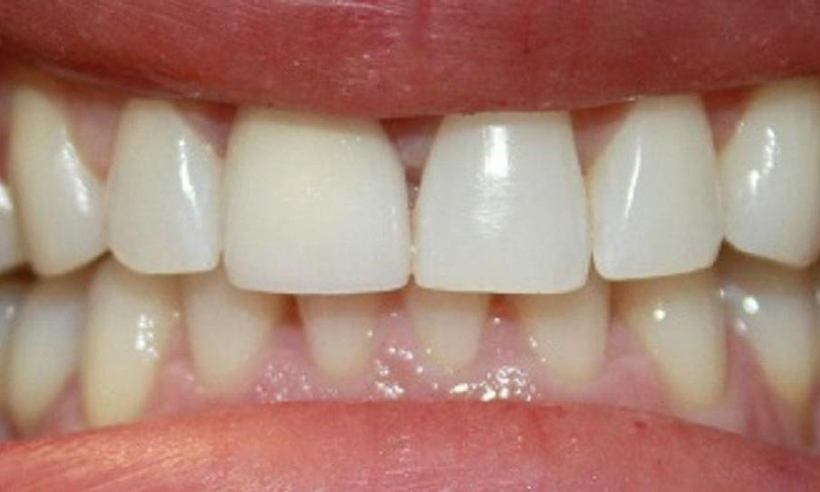 a patients two front teeth, newly shapen from veneers | dental veneers vienna va