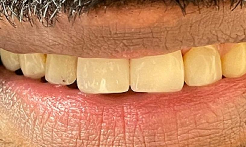teeth after veneers at our office | vienna va dental veneers