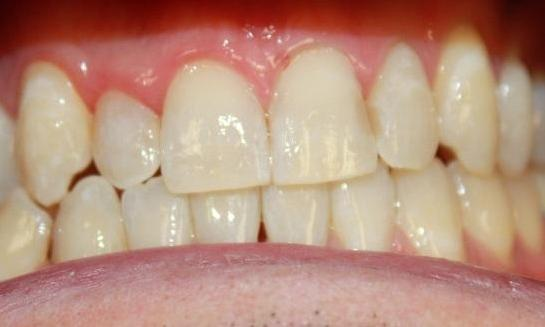 teeth after an in-office whitening treatment | in-office teeth whitening vienna va