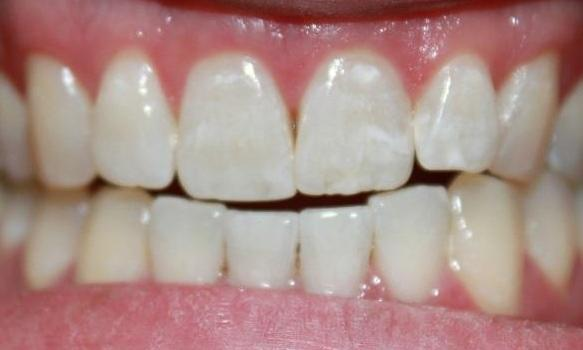 teeth after an in-office whitening procedure | professional teeth whitening dentist vienna va