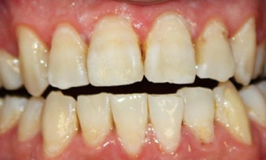 teeth after a resin infiltration