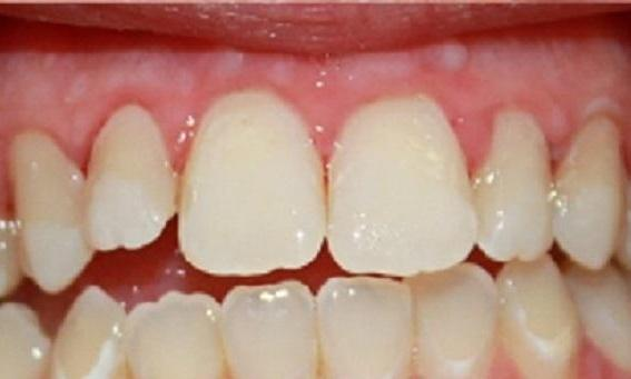 a patients mouth who has had de coloration in their smile removed | vienna va dentist