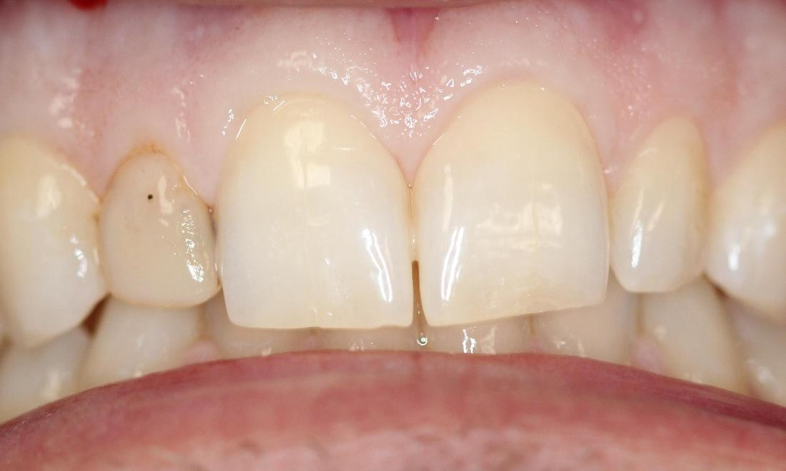 fractured and discolored tooth next to two front teeth | cosmetic dentist vienna va