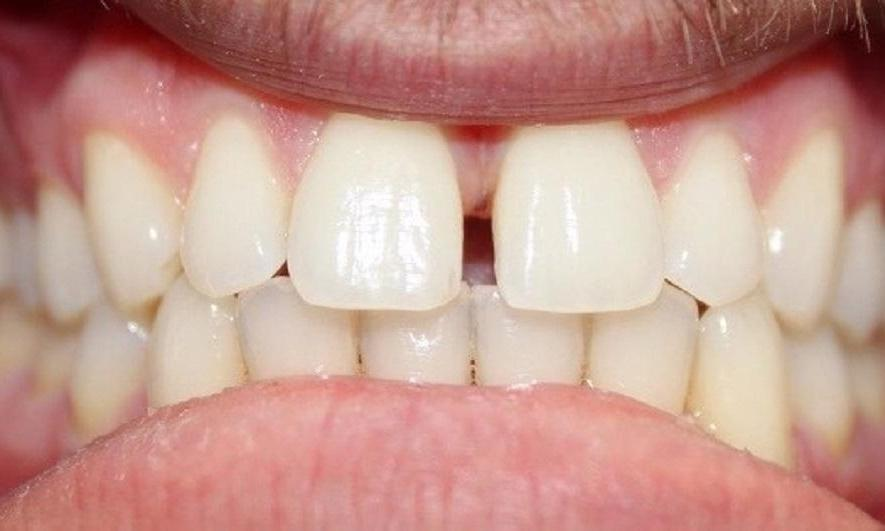 two front teeth with a gap and gum tissue between them | invisalign vienna va