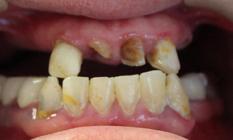 a patient's upper set of teeth, before having a hybrid denture crafted from our vienna dental office
