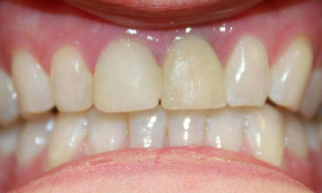 a patients mouth before an implant crown and a porcelain crown | dental implants vienna va
