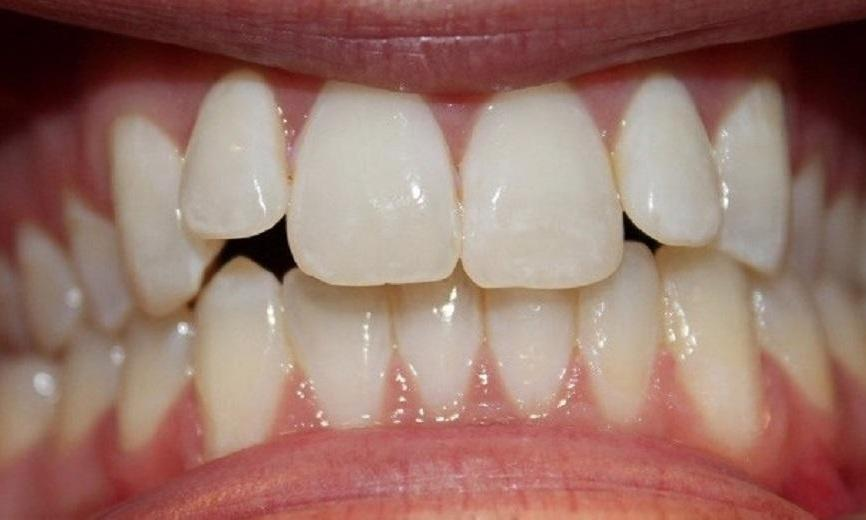 teeth before an invisalign treatment | invisalign vienna va