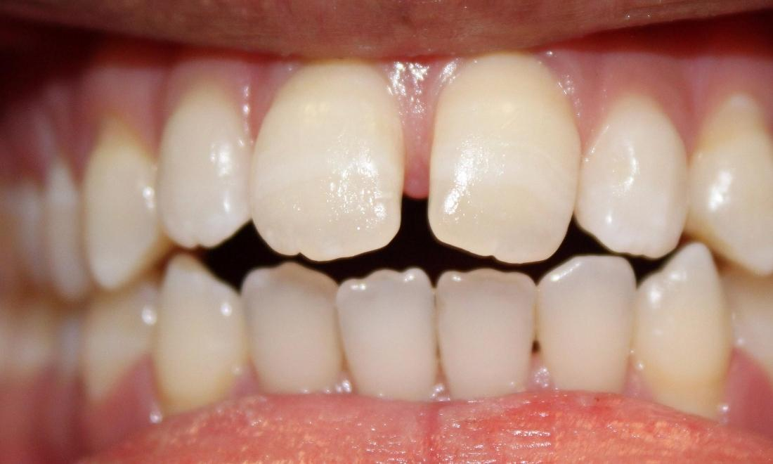 a patients upper front teeth before invisalign with tysons dentistry | invisalign in vienna