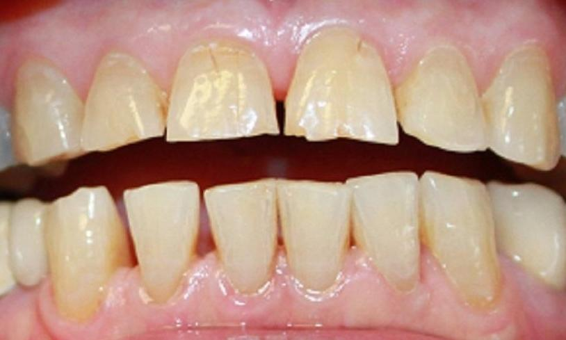 teeth before laser whitening and porcelain crowns from our vienna va office | dentist in vienna