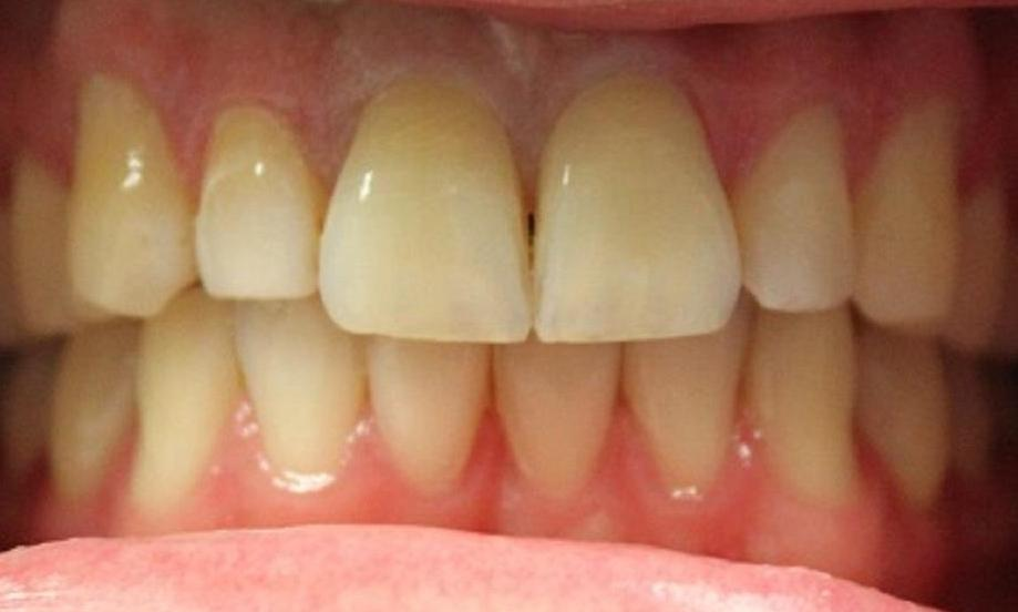 teeth before laser whitening at our vienna office | laser teeth whitening vienna