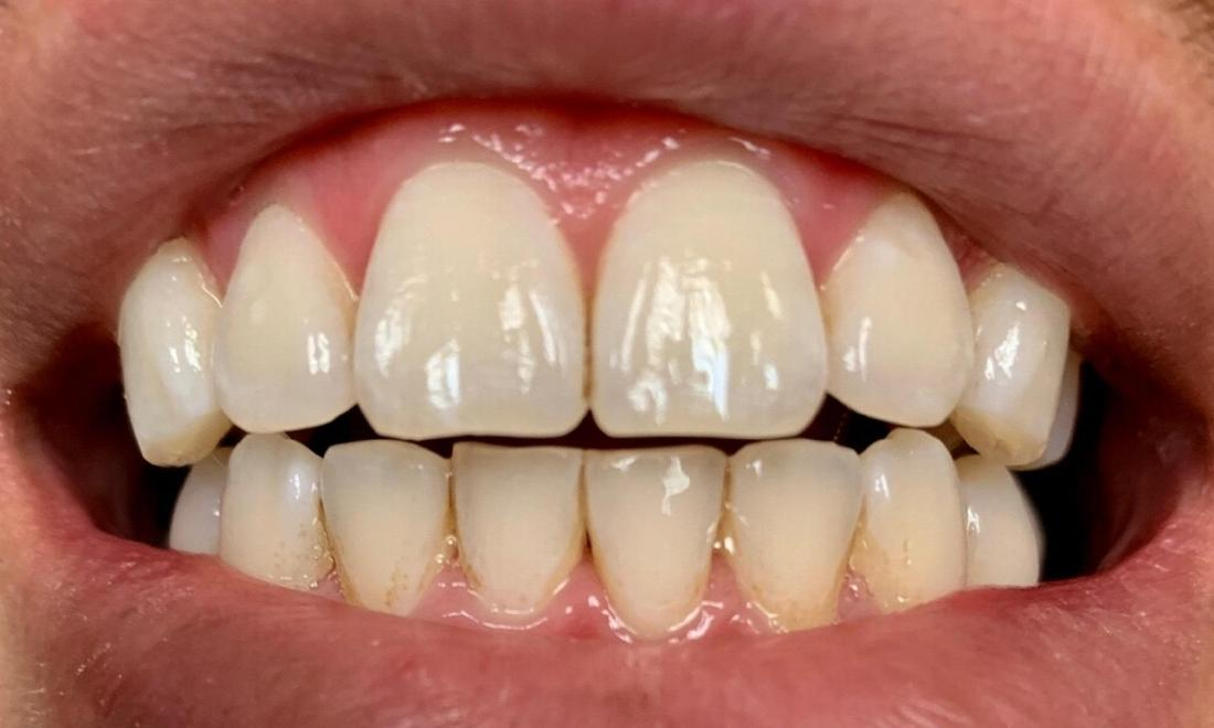 teeth whitening | vienna va